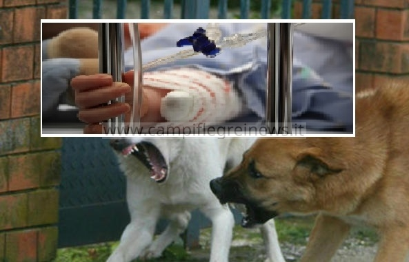 Shock a Monterusciello, bambina azzannata da un cane randagio: 30 punti di sutura