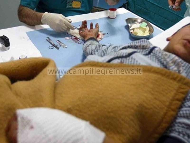 Botti di Capodanno: a Pozzuoli, uomo riporta la lacerazione della mano, a Bacoli 2 feriti e una a Licola